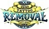 Reno Tattoo Removal Coupons